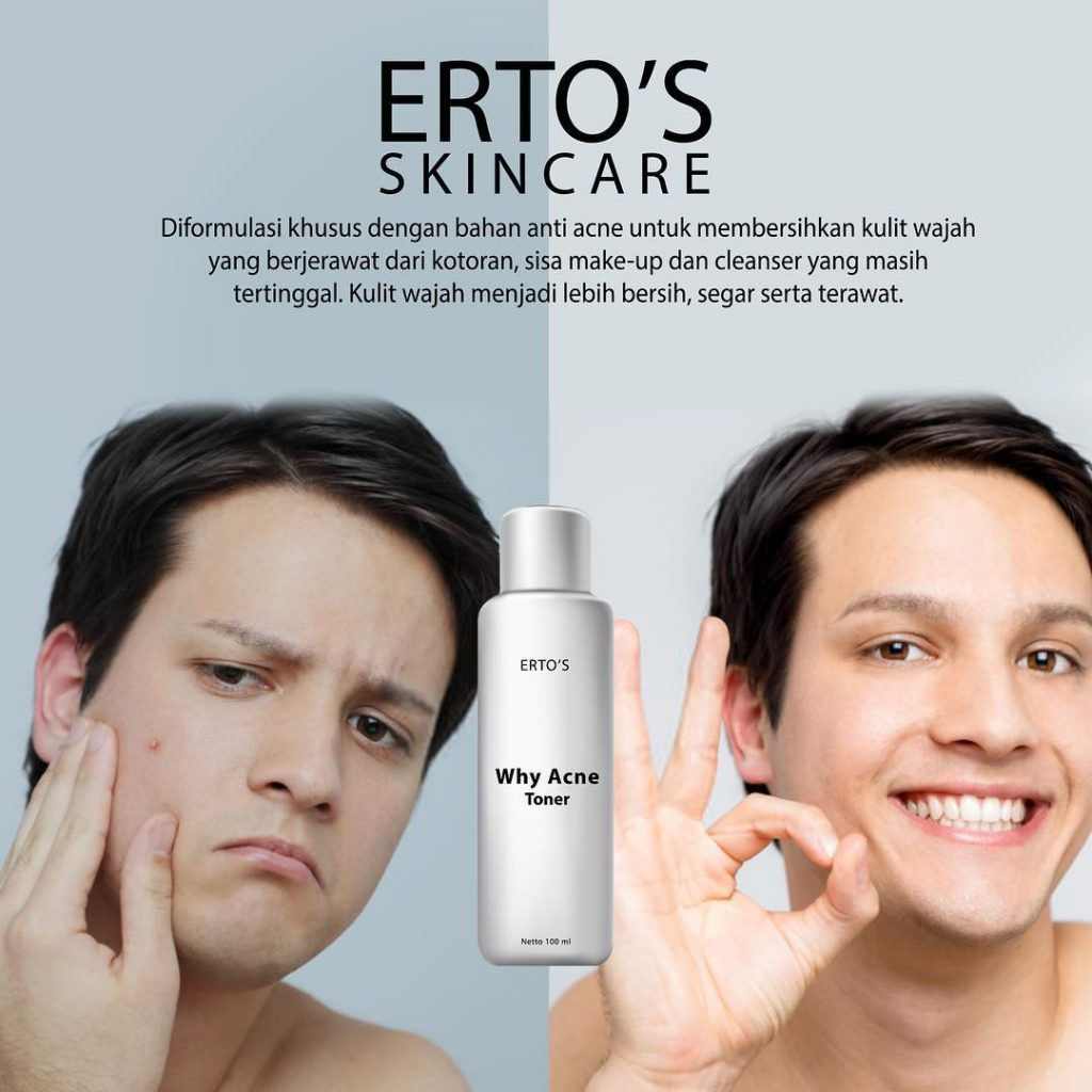 Ertos Why Acne Toner